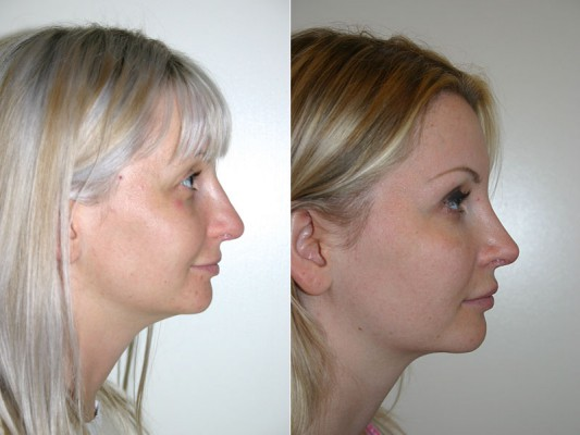 Nose shape and structure were improved with closed rhinoplasty on this 29 year patient, undergoing the rhinoplasty procedure in our Vancouver clinic.*