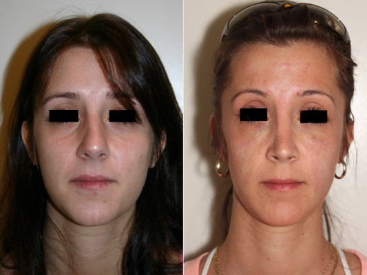 Before and after view of this closed rhinoplasty patient, showing a straightening of the nose, narrowing of the nose tip, removal of the bump and rebalancing of the angle between the bottom of the nose and upper lip.*