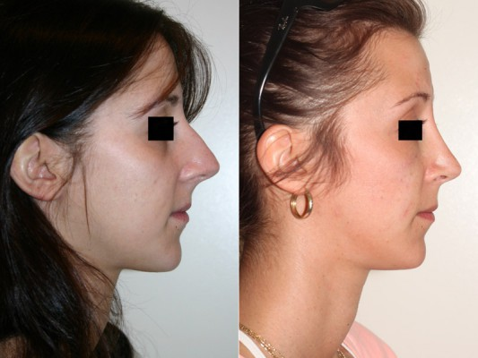 Multiple nasal corrections were made in this close rhinoplasty surgery, including straightening of the nose, narrowing of the nose tip, and deprojecting (making shorter) of the nose tip.*
