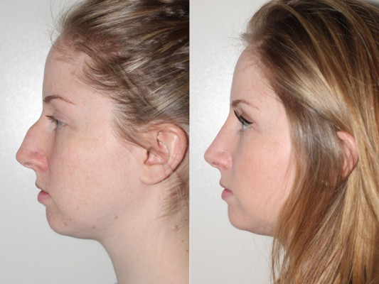 Closed rhinoplasty in Vancouver on a 25 year old patient to remove the prominent bump on the nose bridge and to decrease the nose length.*