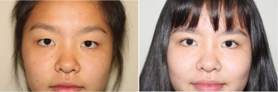Before and After Image of Asian plastic surgery on a young female who has undergone Upper Eyelid cosmetic facial plastic surgery.
