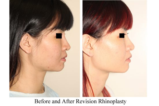 Before and after images of Asian plastic surgery on a female who has undergone a Revision Rhinoplasty.
