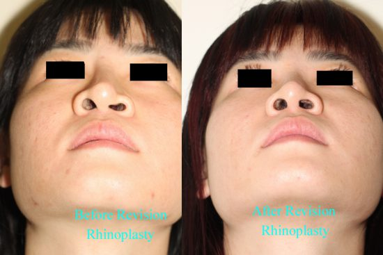 Before and After Revision Rhinoplasty*