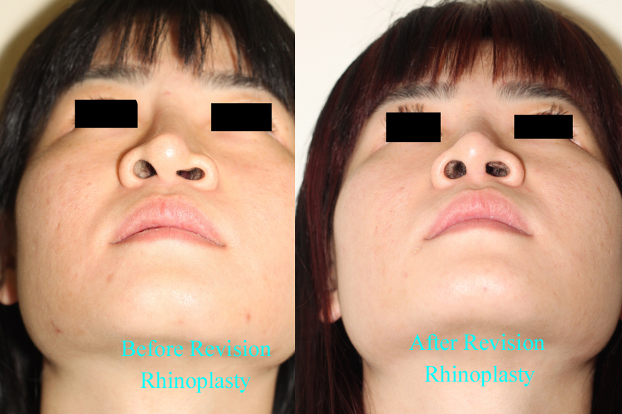 Before & After Revision Rhinoplasty Nasal Augmentation - Underneath View