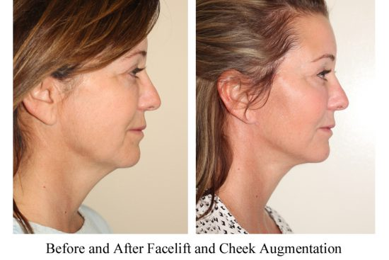 Before and after images of a female who has undergone a Facelift and Cheek Implant Surgery.