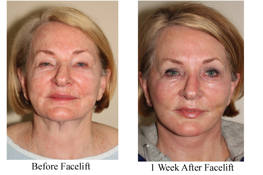 new non surgical facelift