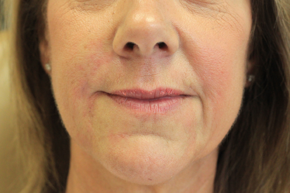 Juvederm Ultra Xc Used To Fill Lines Around The Mouth