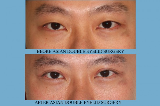 Before and after images Asian plastic surgery on a male who has undergone double eyelid surgery.