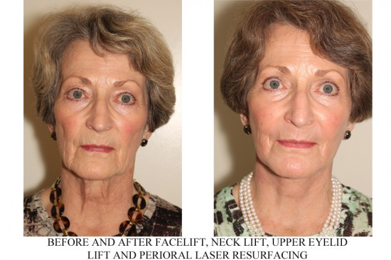 before and after photos of SMAS facelift in Vancouver by Dr. Denton