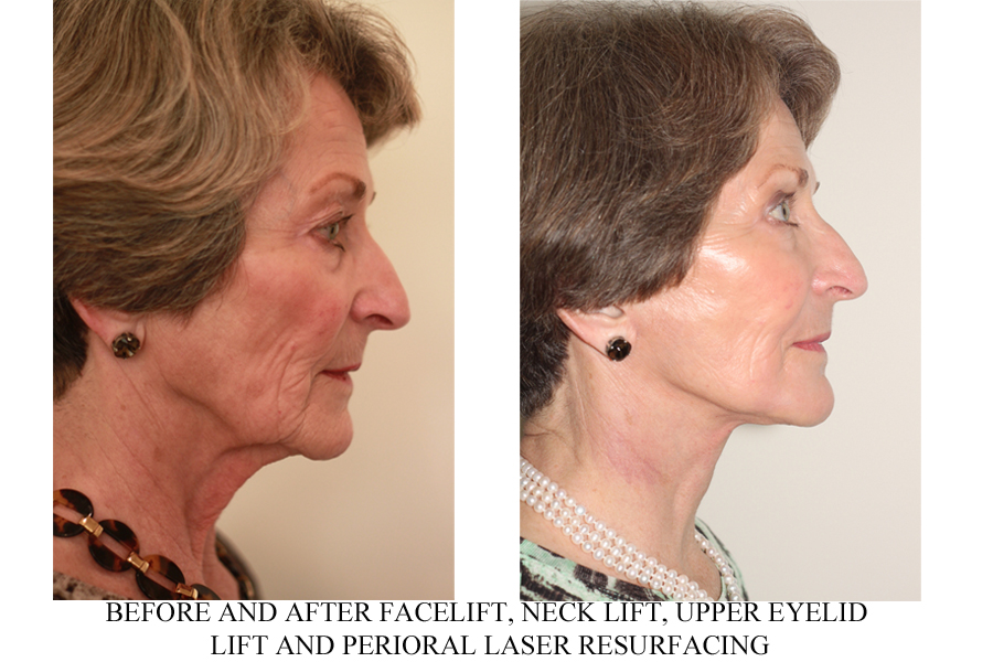 Facelift Vancouver Before and After - Dr. Andrew Denton
