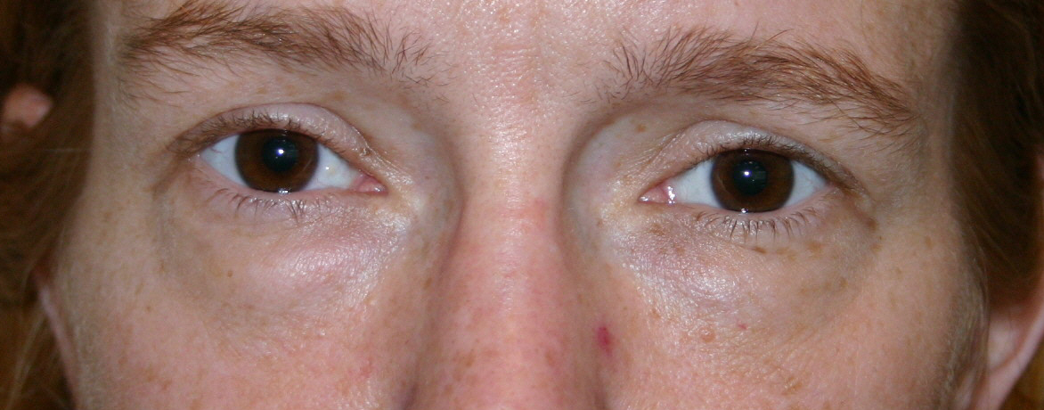 Before Lower Eyelid Blepharoplasty