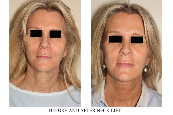 isolated necklift surgery in Vancouver to revitalize tone of jaw and neck