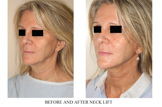 An isolated necklift and submentoplasty is successfully used to tighten and rejuvenate the jawline and neck in this patient.*
