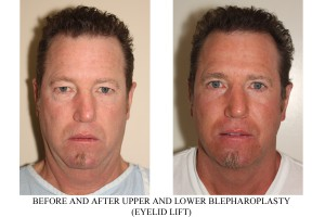facial cosmetic procedures for men - Before and After image of a male who has undergone Upper and Lower Blepharoplasty.