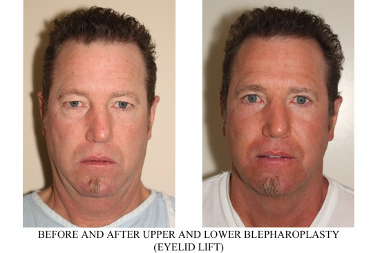 Before and After image of a male who has undergone Upper and Lower Blepharoplasty.