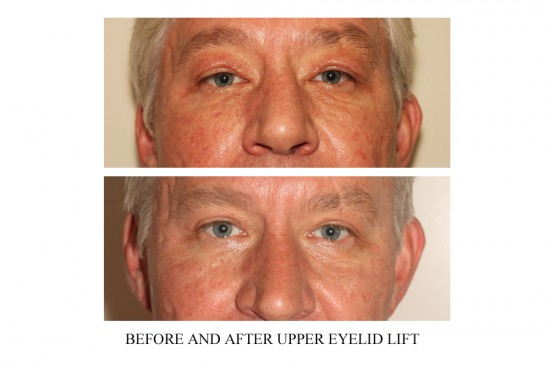 upper blepharoplasty surgery in Vancouver to result in more youthful appearance