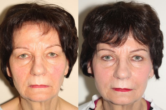 Eyelid lift surgery on this patient resulted in a much more alert and youthful appearance.*