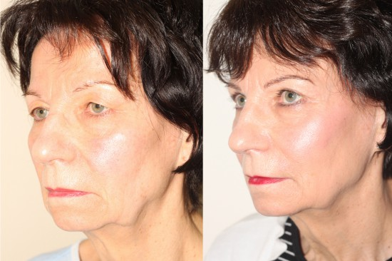 Before and After image of a female who has undergone Upper Blepharoplasty.