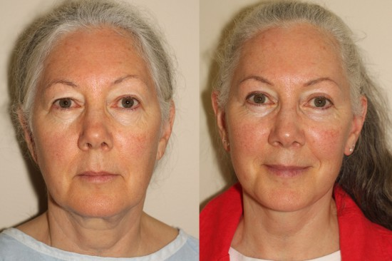 Before and after facelift, upper blepharoplasty and right sided browlift.*
