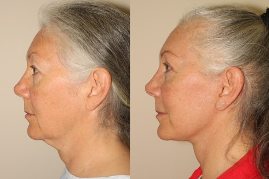 Photographs demonstrating the marked change following facelift and upper blepharoplasty surgery in this female patient.  Note the absence of visible scars in front of the ears and the absence of any significant change in the shape or position of the ear and earlobe and the absence of changes in the position of the hairline.*