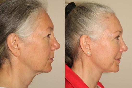 Before and after facelift, upper blepharoplasty and right sided browlift*