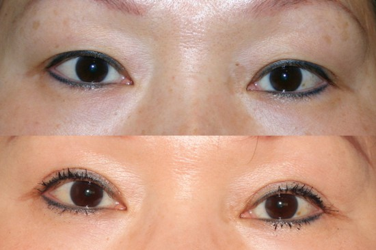 Before and after image of Asian plastic surgery on a young female who has undergone Asian eyelid surgery to create a more defined eyelid crease.