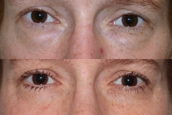 Before and 5 years after eyelid lift surgery performed to eliminate fullness and puffiness in the lower eyelids.*