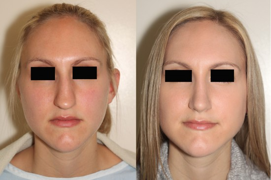 Open rhinoplasty surgery in Vancouver to straighten and narrow the nose*