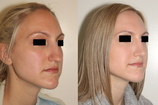 Open rhinoplasty by Dr. Denton to reduce nasal hump and to rotate, refine and narrow the nasal tip*