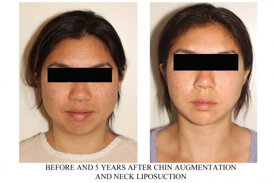 Before and after photos of facial implant surgery – specifically chin implants and facial liposuction of the neck*