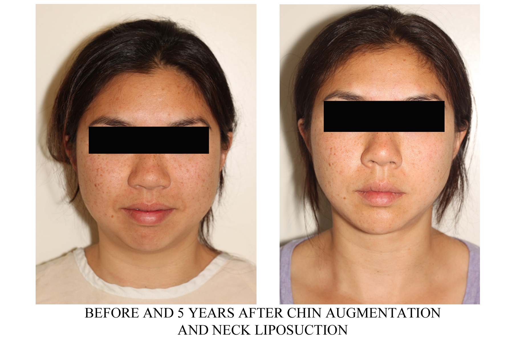 chin implant and neck AP before after