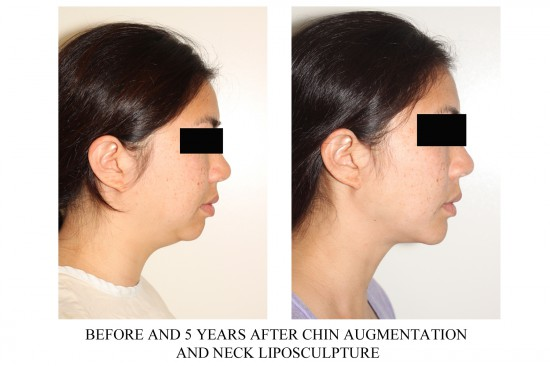 Before and after photos showing side profile of a patient who underwent chin implant and neck/facial liposuction surgery*