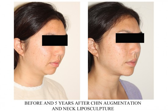 Before and after photos of a young female who has undergone facial implant surgery – specifically chin implants and facial liposuction of the neck.