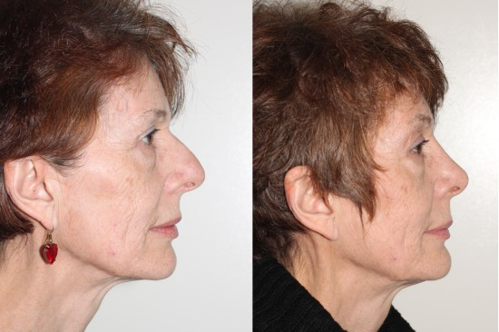 Vancouver rhinoplasty to correct the width of nose and nostrils*