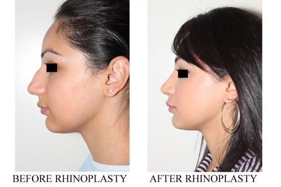 Dorsal redution, tip rotation and tip deprojection following closed rhinoplasty surgery.*