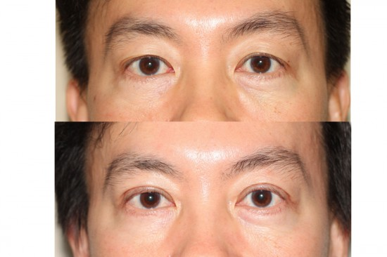 Before and after image Asian plastic surgery on a male who has undergone a blepharoplasty procedure to remove excess skin.