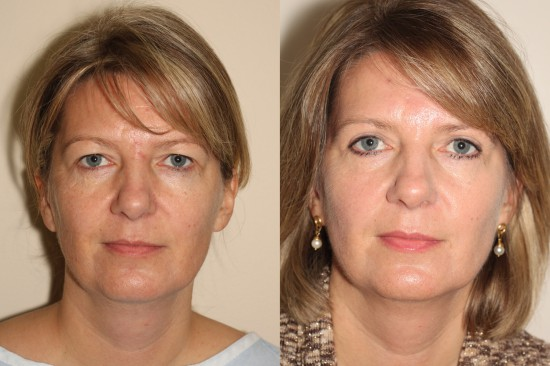 Before and after image of a female who has undergone Upper Eyelid Surgery.