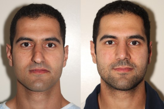Frontal view of an open rhinoplasty patient before and after surgery.  This view demonstrates very nicely the aesthetic improvements to, and dramatically improved symmetry of, the nasal tip.*