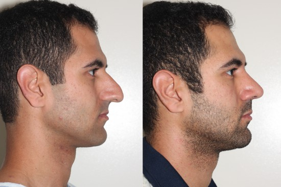 Open rhinoplasty right lateral view before and after photographs.*