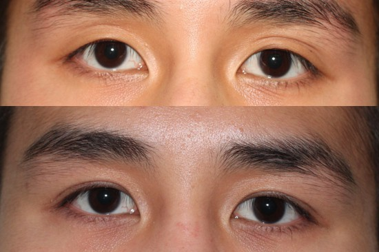 Before and after Asian plastic surgery on a male who has undergone eyelid surgery.