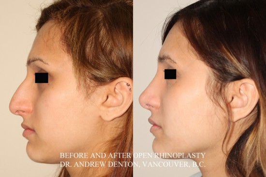 Following rhinoplasty surgery, the profile height has been lowered and the tip has been rotated and shortened.  The result is a more aesthetically pleasing, youthful and feminine profile.*