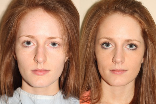 During closed rhinoplasty surgery, the nose was straightened and the tip was deprojected and rotated.*