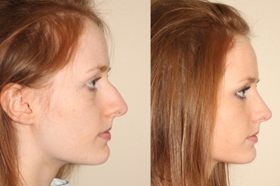 During closed rhinoplasty surgery, the height of the nose was significantly reduced and the tip was deprojected and rotated.*
