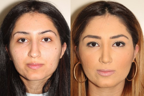 Following open rhinoplasty surgery, the patient's nose is straighter and narrower.  The tip has been refined and the alar base (nostrils) have been narrowed.*