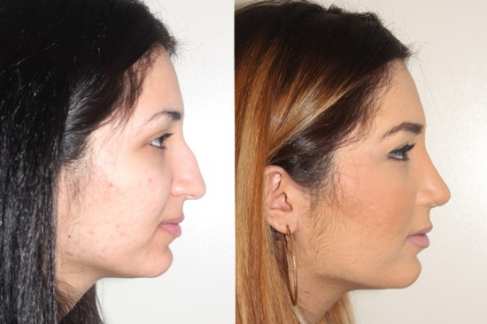 During open rhinoplasty surgery, the dorsal hump (bump on the top of the nose) was reduced and the tip was rotated and deprojected.  *