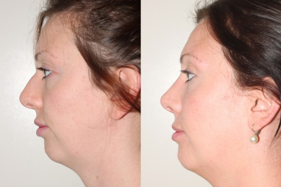 Before and After Rhinoplasty*
