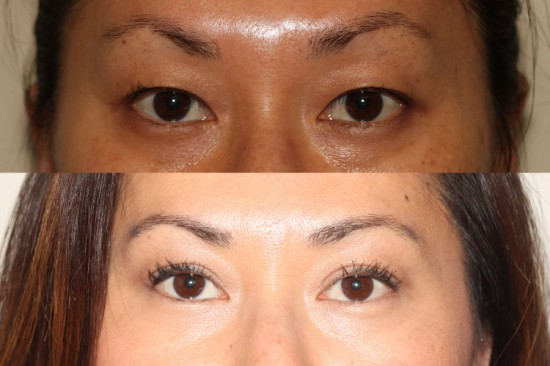 Before and after images of Asian plastic surgery on a female who has undergone double eyelid surgery.