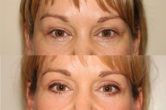Before and After image of a female who has undergone Upper and Lower Eyelid Lift facial plastic surgery.