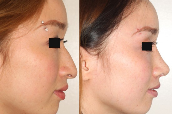 Prominent hump with long and drooping tip reconfigured during open rhinoplasty.*