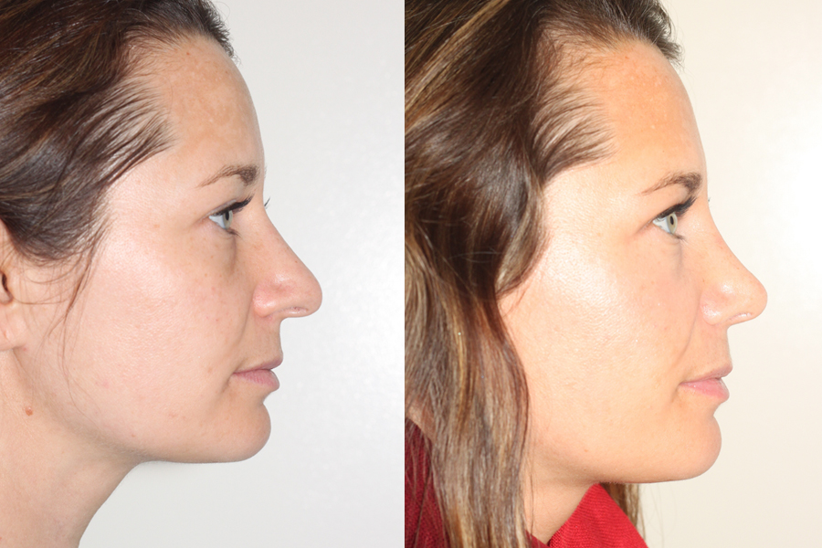 right lateral view of before and after open rhinoplasty surgery by Dr. Andrew Denton